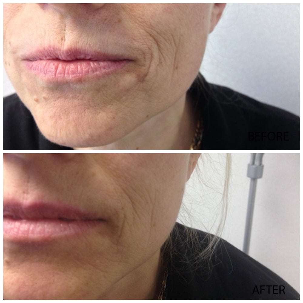 We specialize in Natural, Organic and Holistic Skin Care, before & after  before & after Before & After ba4