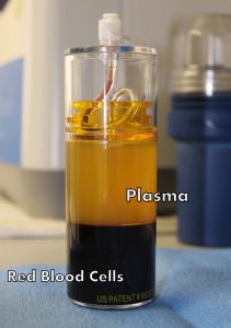 PRP, Platelet-Rich-Plasma