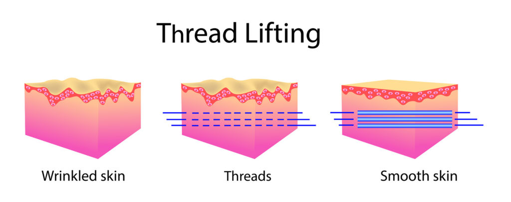 Thread Lifting