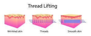 Thread Face Lift