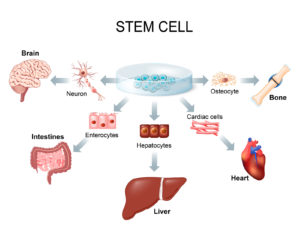 Stem Cell Therapy Michigan