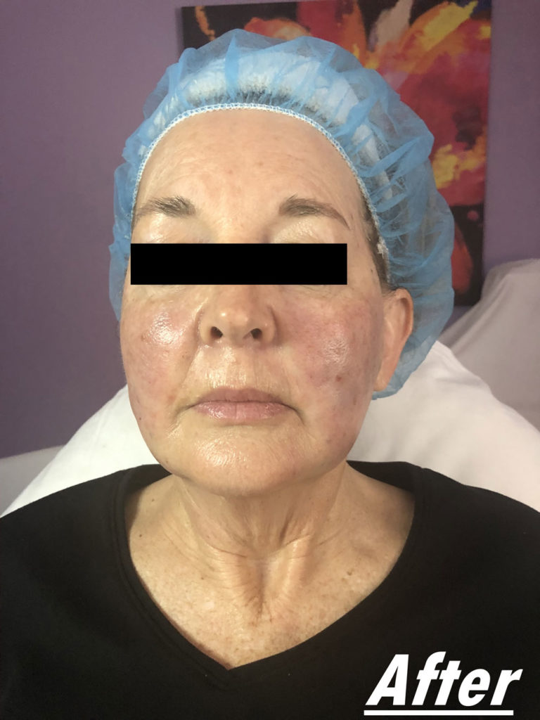 Facial Transformation After