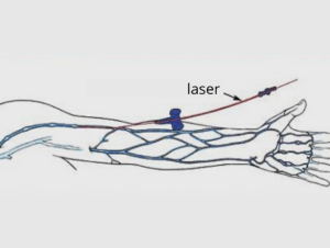 Intravenous Laser Therapy